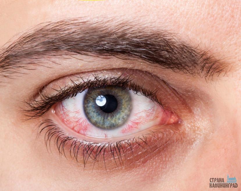 Почему глаза болят и слезятся от света thumbnail